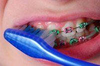 Braces Care - Orthodontist in Glastonbury, CT