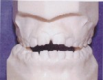Openbite - Occlusion - Orthodontist in Glastonbury, CT