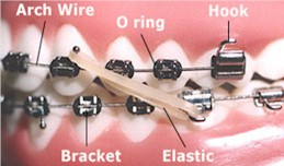 Orthodontic Terms - Orthodontist in Glastonbury, CT